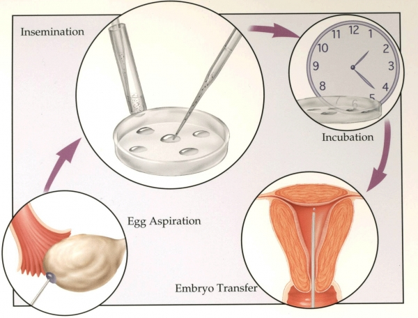 ovarian-stimulation